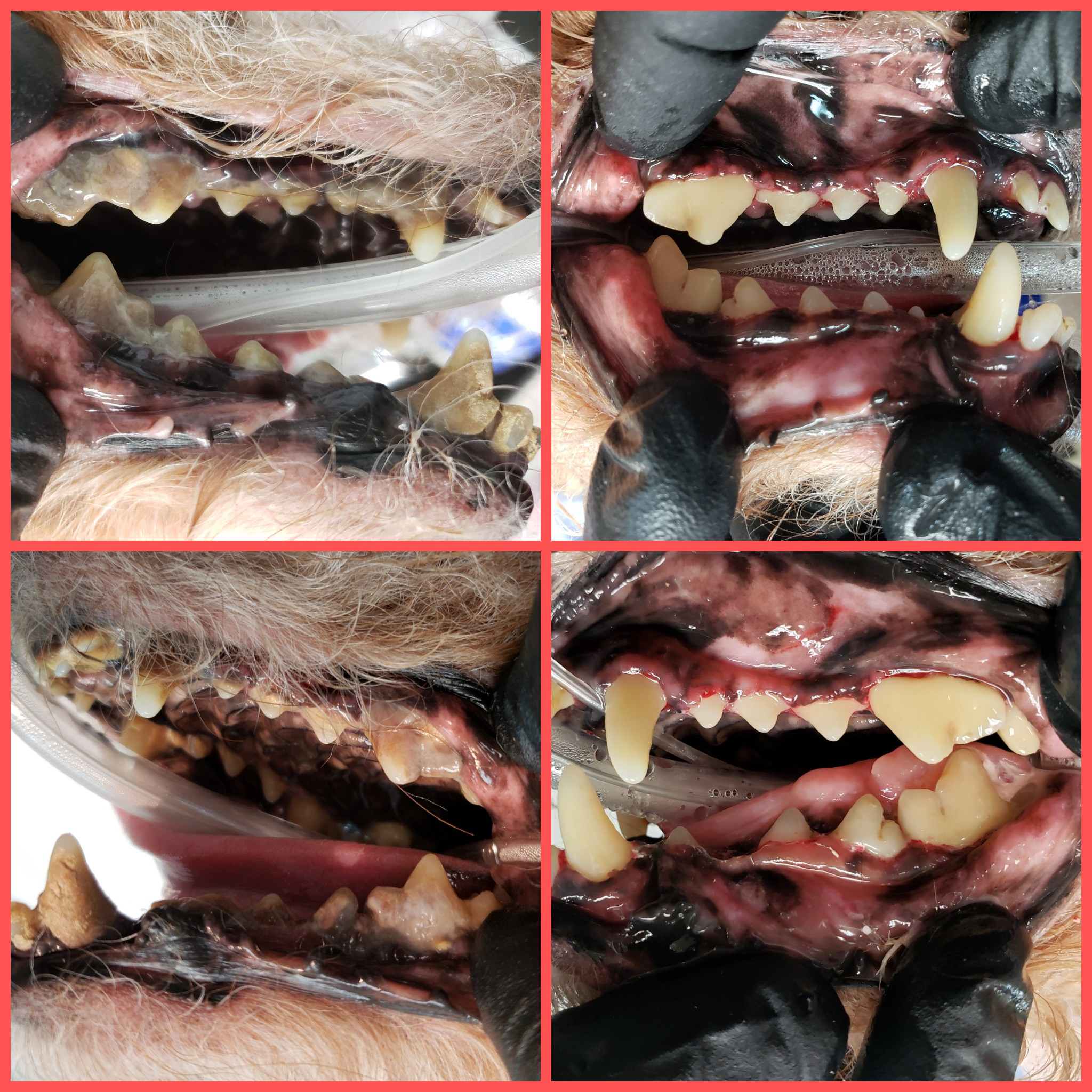 PMC Dental Care Before and After Cleaning